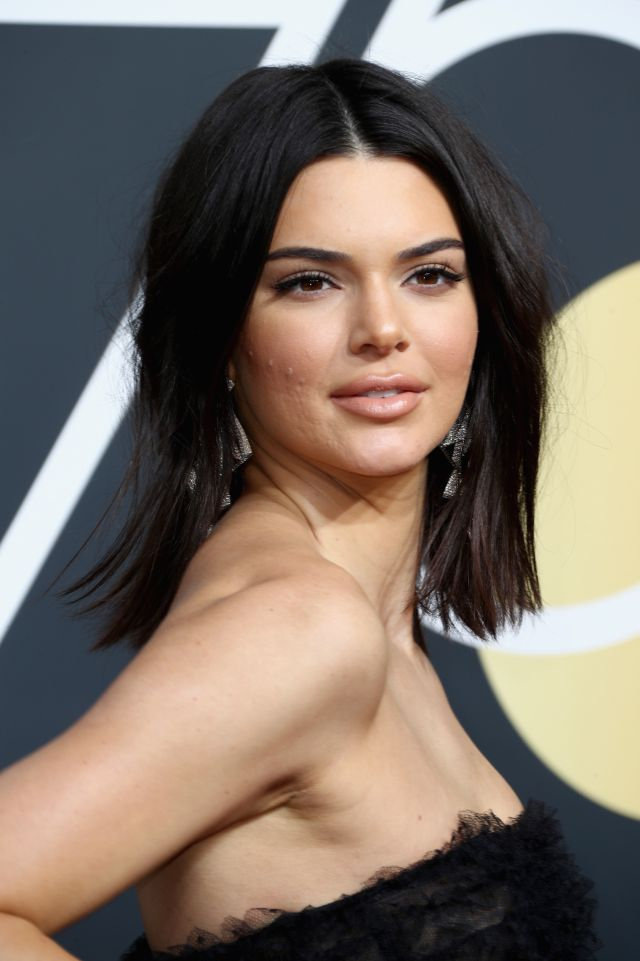 No solo Kendall Jenner, muchas otras celebs reivindican sus granos